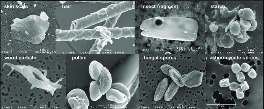 Coronavirus e inquinamento particelle al microscopio